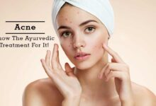 Acne Vulgaris Causes and Treatments