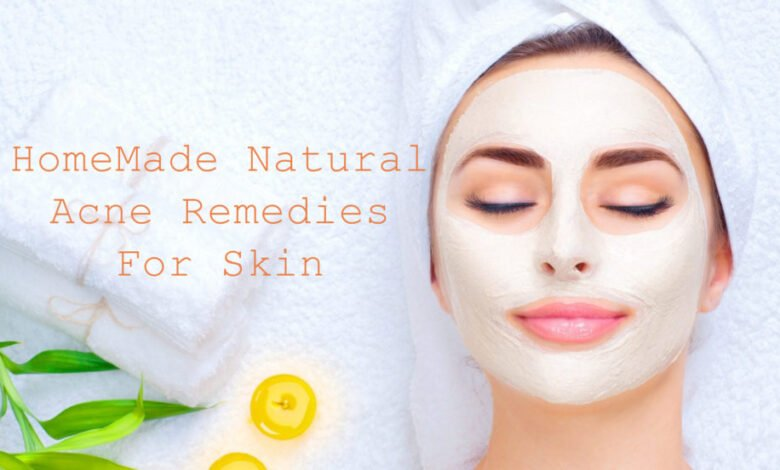 Top 5 Acne Remedies | Pimple Home Remedies