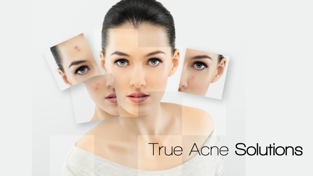 5 Acne Treatment Tips You Can Use Today